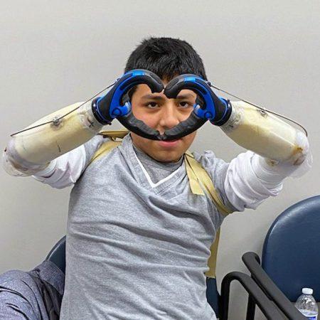 Patient With Prosthetics